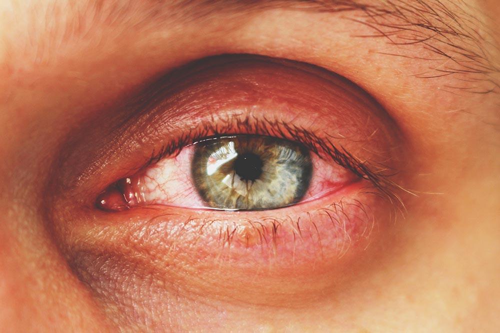 irritated eyes